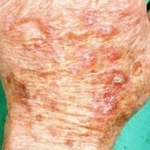 actinische keratose