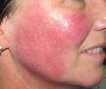 roodheid huid